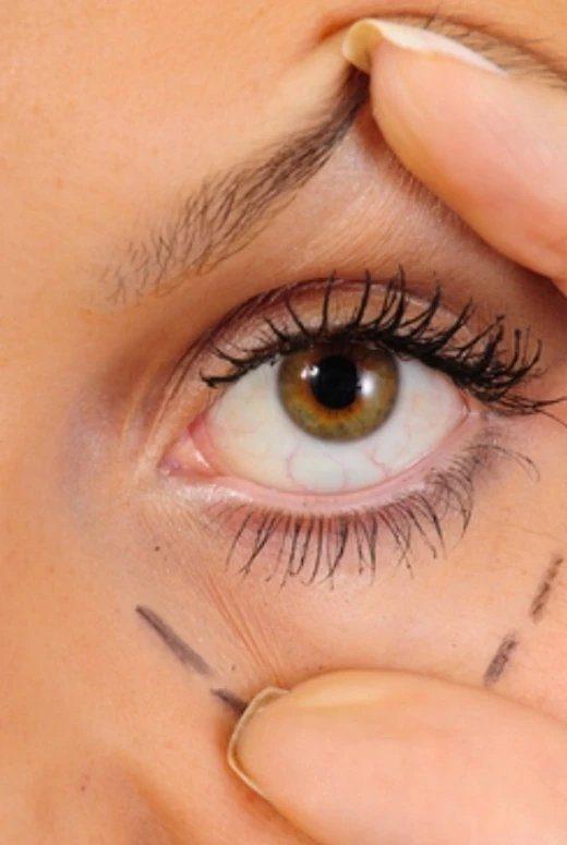 eyelids botox